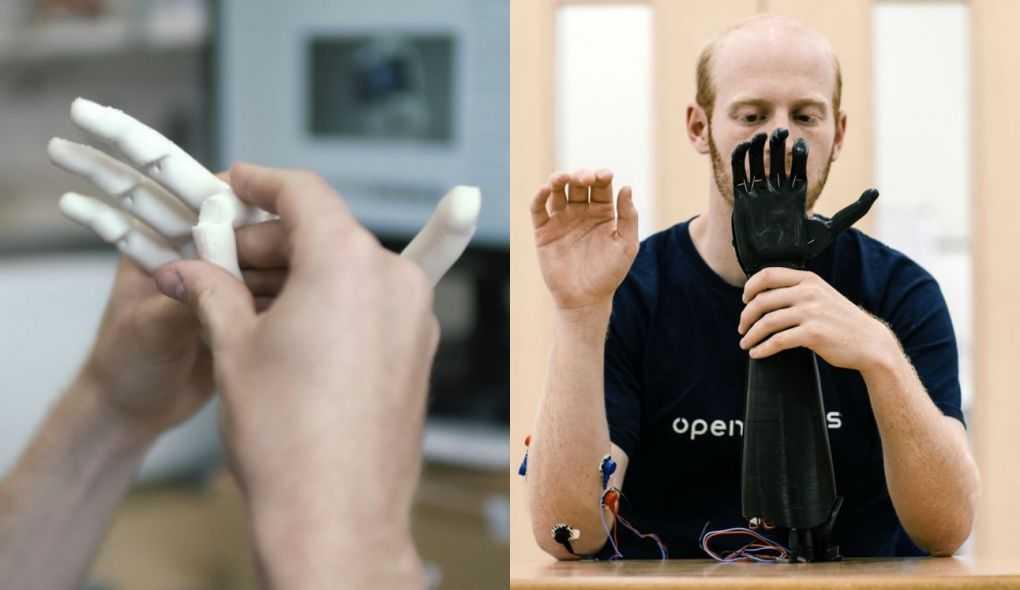 Protótipo para testes e a prótese já finalizada pela Open Bionics