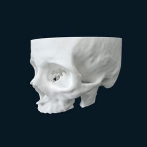 Impressão 3D para medicina